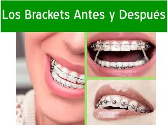 sensibilidad despues de una limpieza dental