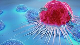 Waspadai Kanker Multiple Myeloma Serta Gejala yang Sering Muncul Berikut Ini!