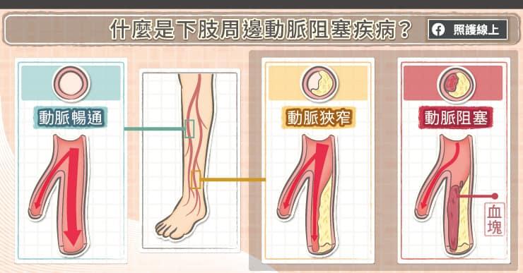 什麼是下肢周邊動脈阻塞疾病?