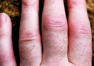 Coronavirus: Arthritis patients takes double time to become corona free