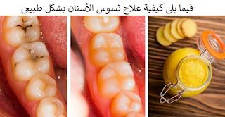 فيما يلي كيفية علاج تسوس الأسنان بشكل طبيعي !!!