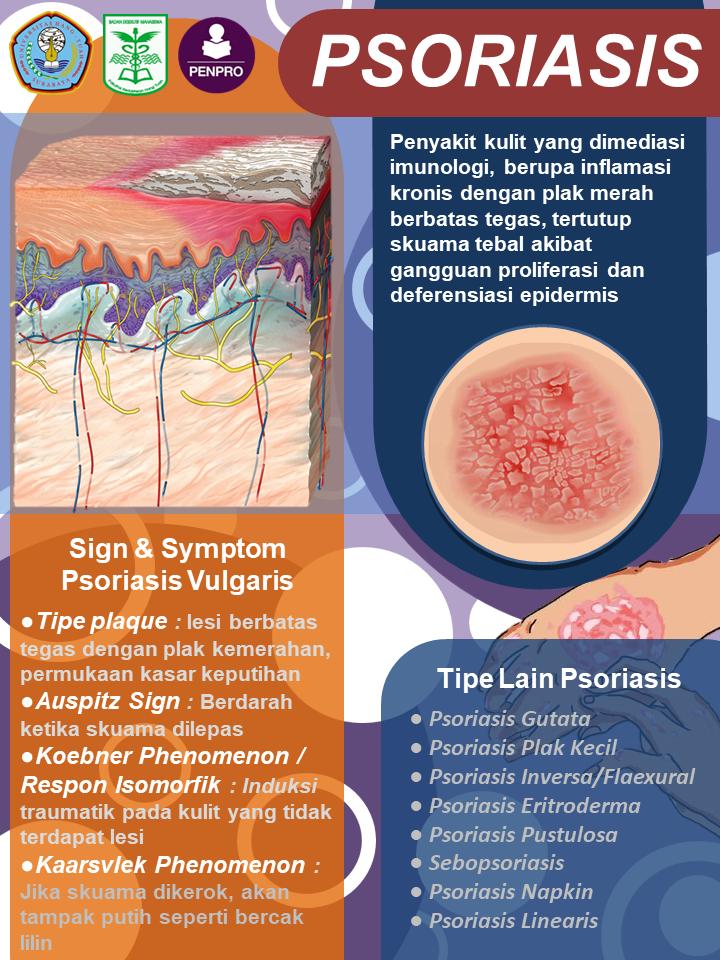 manifestasi klinis psoriasis