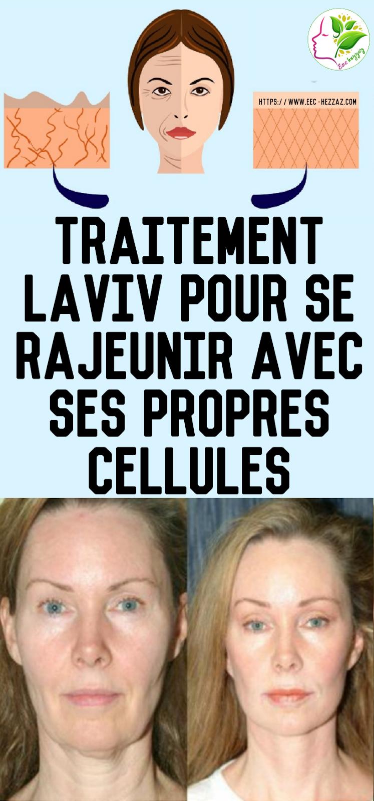 Traitement Laviv pour se rajeunir avec ses propres cellules