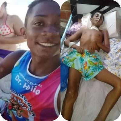Após sofrer acidente, jovem Sebastian do bairro Tatus precisa de doações