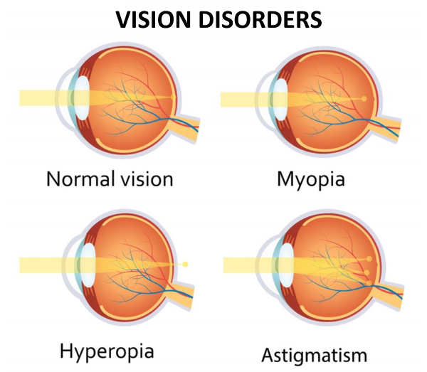 Types of Refractive Errors