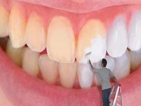 طرق منزلية لتبييض الاسنان في المنزل.