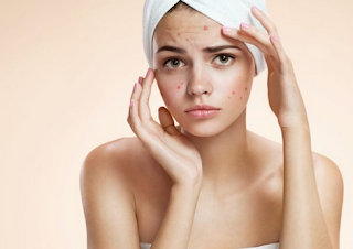 https://www.theemploymentempire.com/2019/02/tips-to-get-rid-of-acne-in-shortest.html