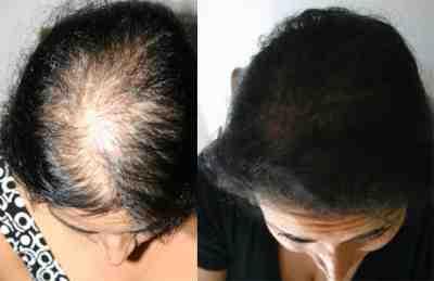 خلطات لتكثيف الشعر الخفيف مجربه