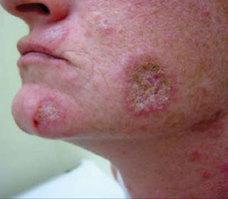 A severe lupus rash on the face with flaking and scaling pictures