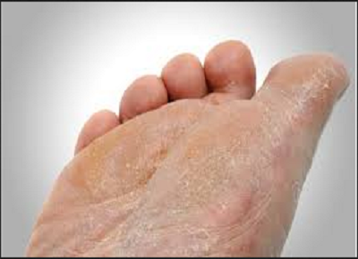 feet health, foot, diabetes foot, legs, cold feet