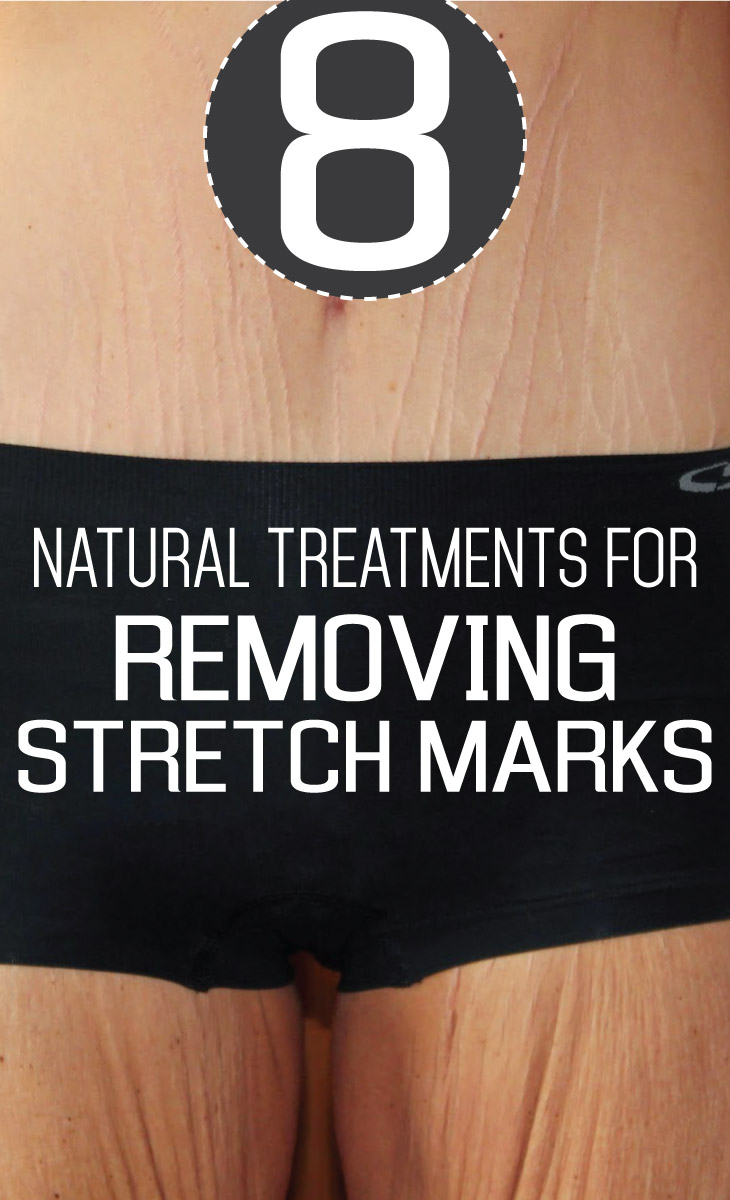 8 Natural Treatments For Removing Stretch Marks