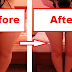 Simple Tricks To Lose One-Inch Of Your Fat Thighs Within 2 Weeks!