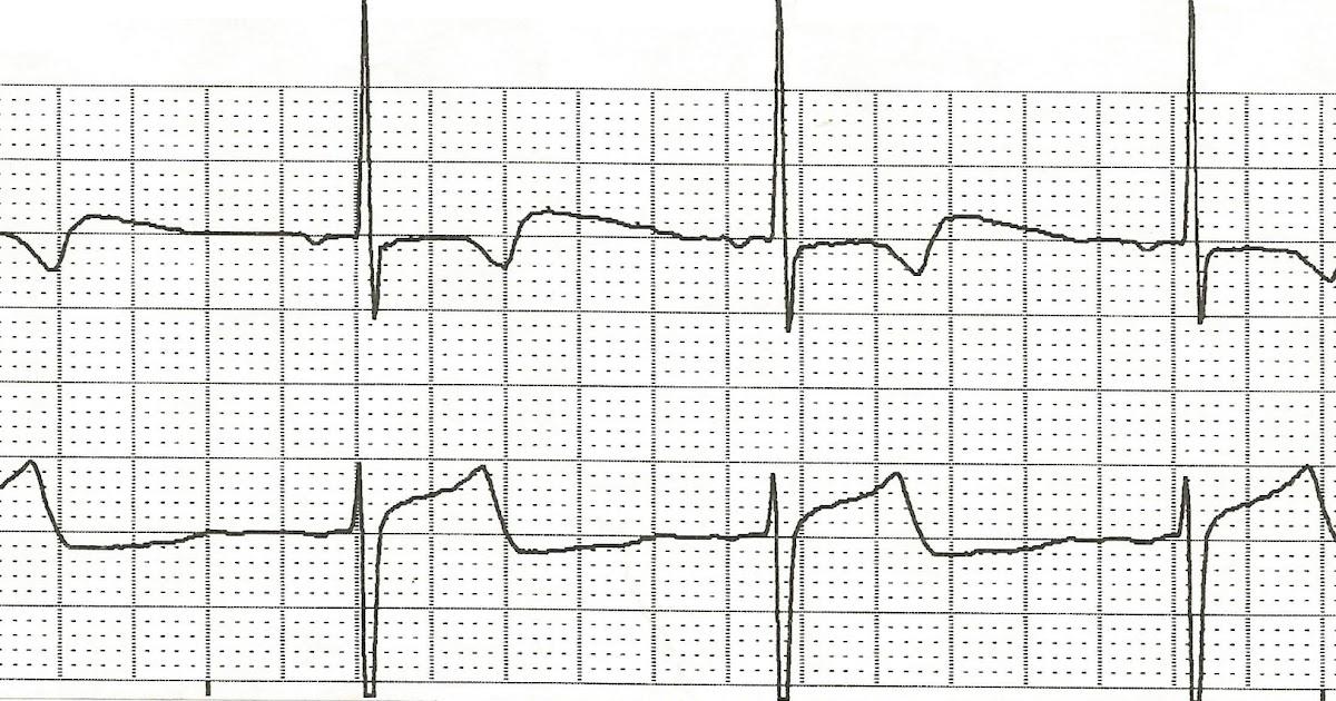 Float Nurse: Practice EKG Rhythm Strips 99