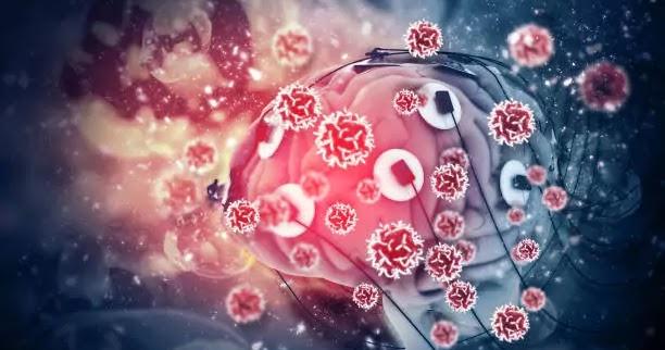Coronavirus: How Can Covid-19 Attacks The Brain