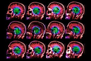 variante genética que afeta muito o envelhecimento cerebral