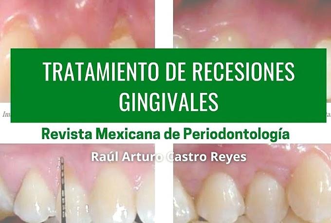 PDF: Tratamiento de RECESIONES PERIODONTALES mediante COLGAJO DESPLAZADO CORONAL e injerto de tejido conectivo. Reporte de 2 casos