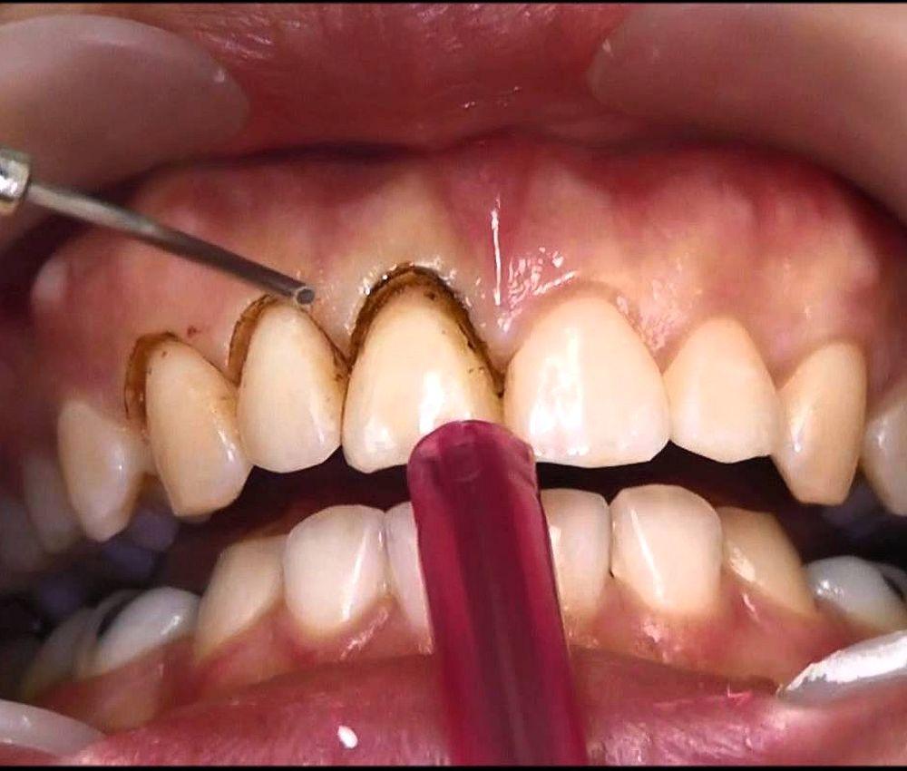 gingivoplastia-laser