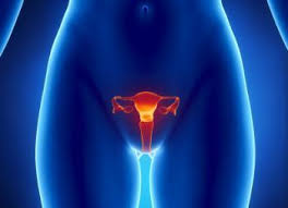 Tall woman with ovarian cancer susceptibility