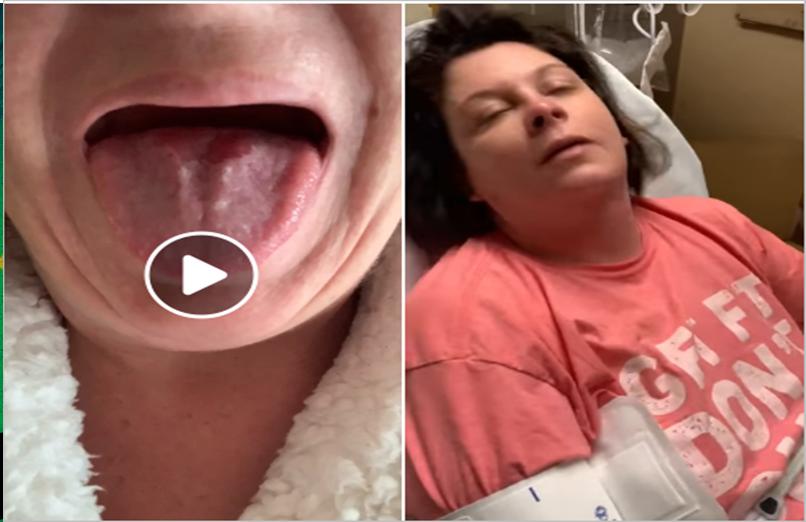 Mais uma vítima: Mulher sofrendo efeito adverso da vacina Covid da Moderna