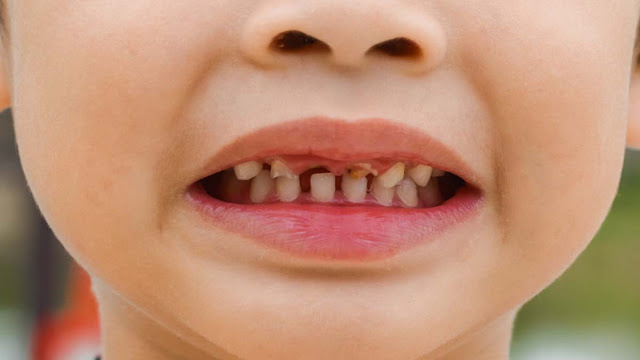 Jumlah Gigi Orang Dewasa dan Anak-anak