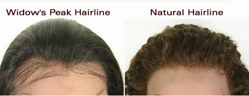 Women wigs: What is the difference between the Widow's Peak
