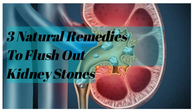 Kidney Stones: What To Know and 3 Ways To Flush Out Naturally
