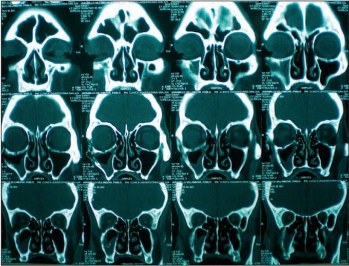 PDF: Osteorradionecrosis como secuela de la Radioterapia