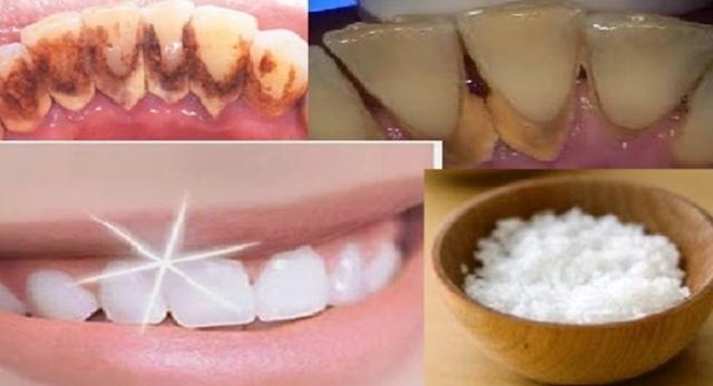 Tak Perlu Biaya Mahal..!!! Gigi Anda Putih Cemerlang Hanya Dalam 1 Detik Dengan Bumbu Dapur GARAM, Berikut Langkahnya...!! COBAIN YUUUKKKK