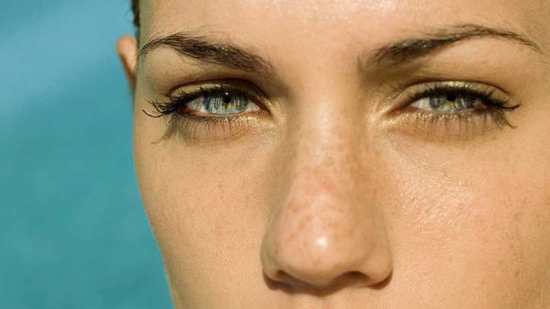 7 Causes of Under Eye Circles