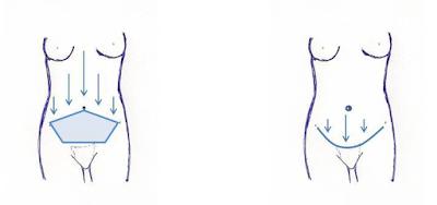 La imagen muestra las cicatrices abdominales de una abdominoplastia