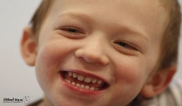 علاج تسوس الاسنان عند الاطفال الرضع .