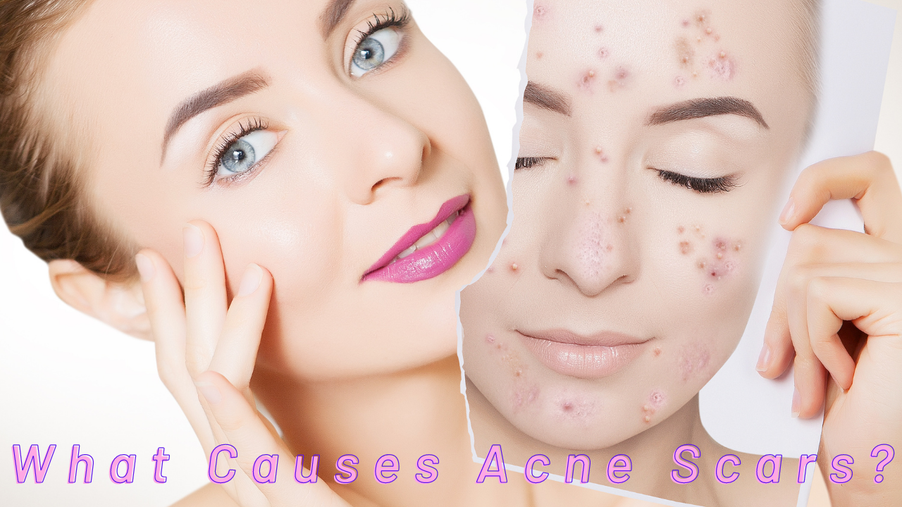 acne-scars-remedy-at-home-the-best-ways-to-remove-acne-scars-2020