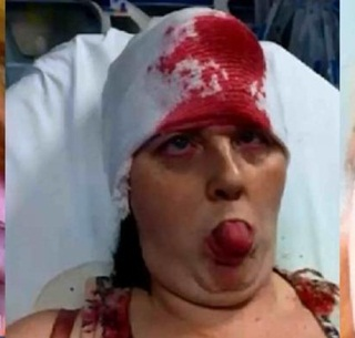 Ngeri, Tanduk di Dahi Wanita Ini Meletus saat Melahirkan