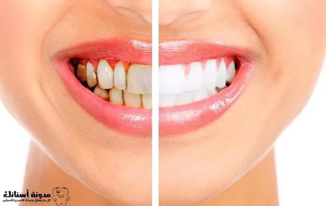 5طرق للحصول على ابتسامة جميلة و جذابة.