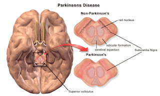 Parkinson's Disease: Symptoms, Causes, Prevention, Treatment