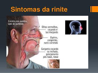 A rinite e seu caminho até atingir os ouvidos - Terapia dos Cones Chineses - São José (SC)