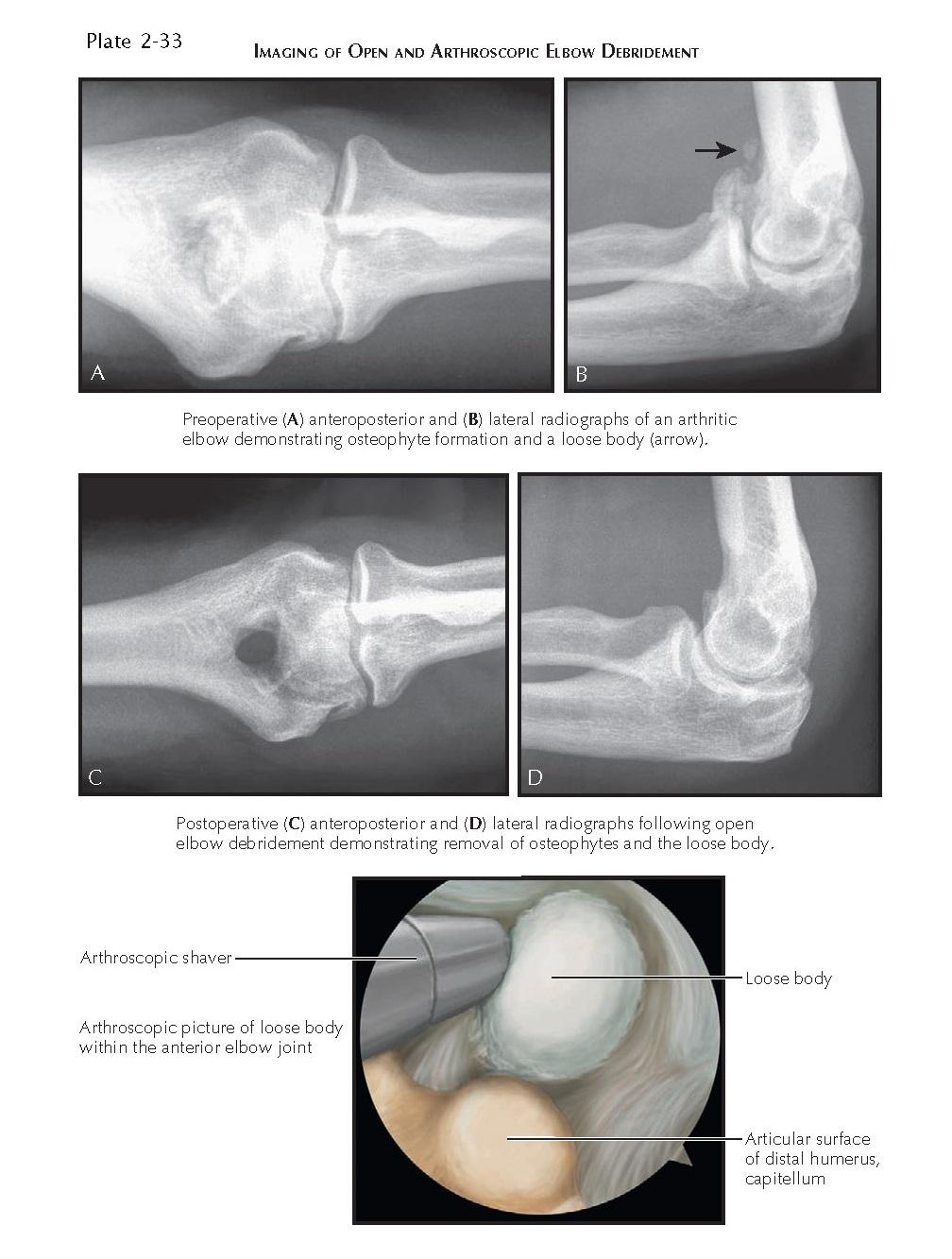 IMAGING OF OPEN AND ARTHROSCOPIC ELBOW DEBRIDEMENT