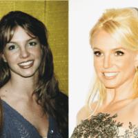 Estetik Yaptıran Ünlülerin Öncesi ve Sonrası Değişimleri