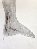 Artwork by Naomi Ortiz. Black and white drawing of a disabled foot. Scars running up the inside of the foot from the bottom of the foot past the ankle.