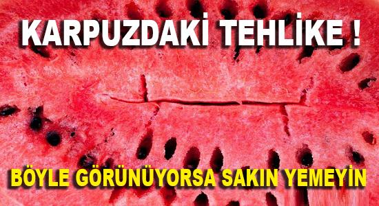 KADIN SAĞLIK, Anamur Haber, Anamur Postası, Anamur Ekspres, Anamur Gündem, Anamur Gazetesi,