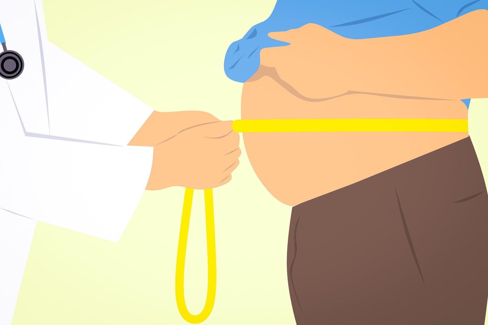 Obesitas sentral