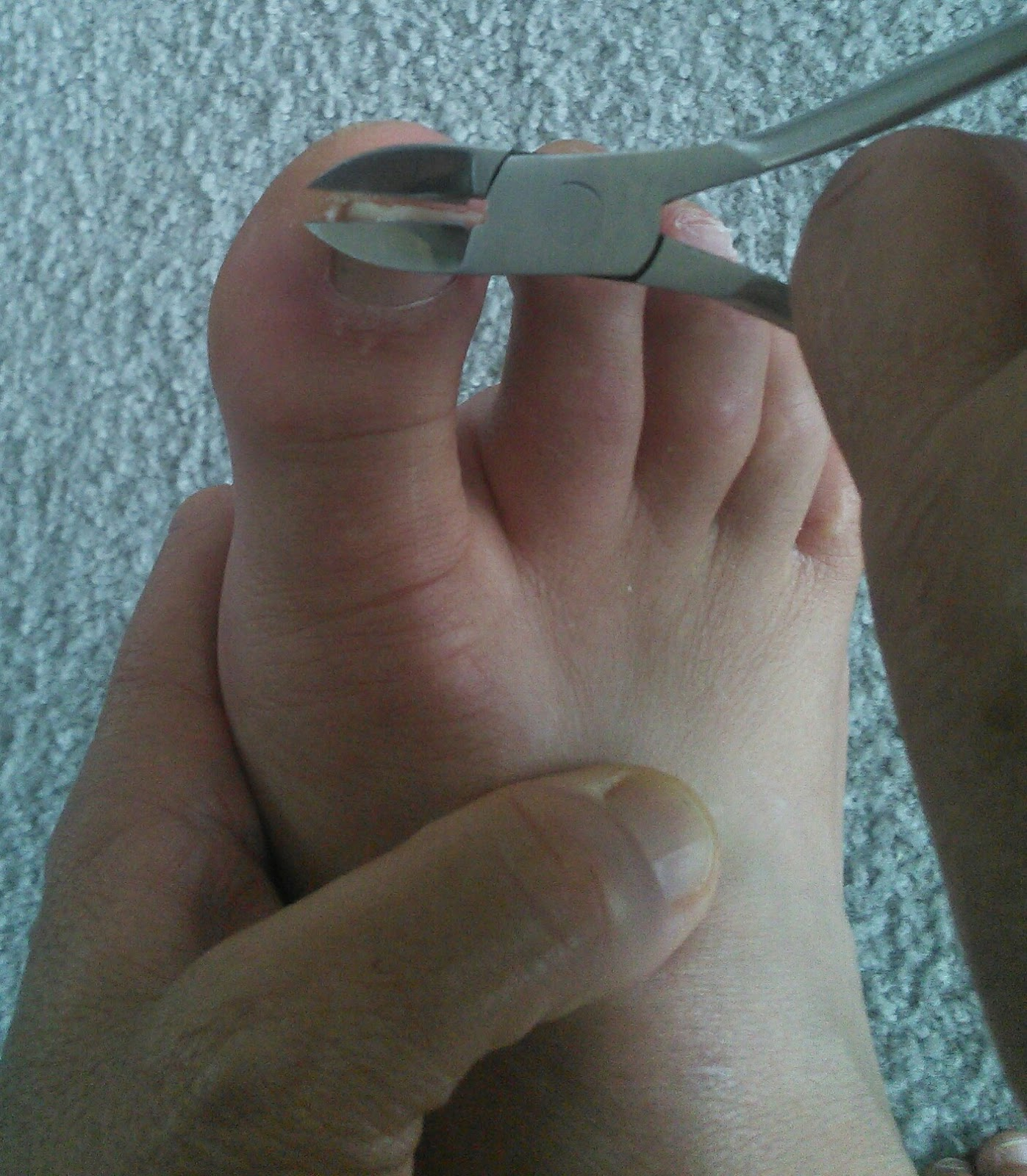 Mom Knows Best : Prevent Ingrown Toe Nails With The Toe Nail Nipper