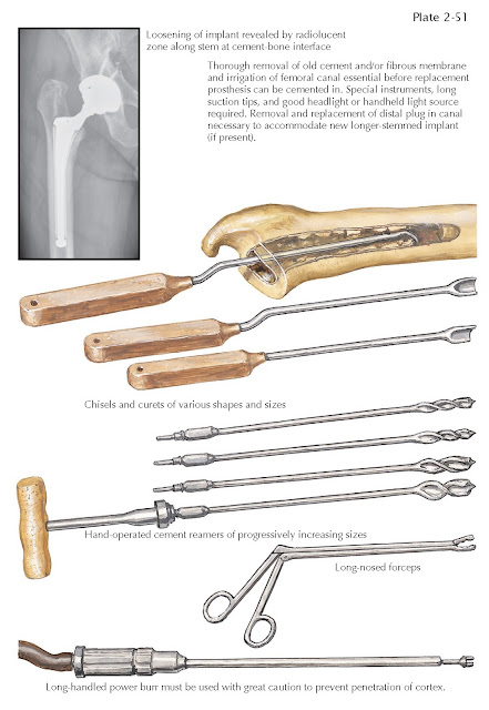 LOOSENING OF FEMORAL COMPONENT
