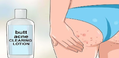 How to Get Rid of Butt Acne Fast