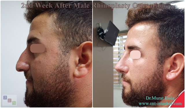 Nose Job For Men in Istanbul, 2nd Week After Male Rhinoplasty Operation