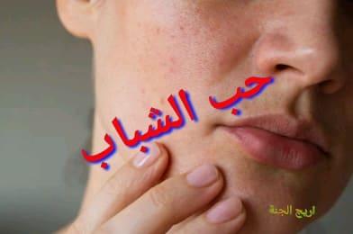 حب الشباب واسبابه وطرق الوقايه منه
