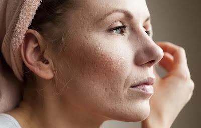 resserrer les pores dilatés de la peau