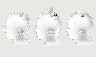 Une puce cérébrale pour améliorer le cerveau? Non, ce n'est pas de la science-fiction
