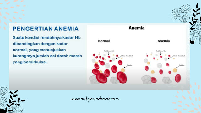 Anemia Defisiensi Zat Besi
