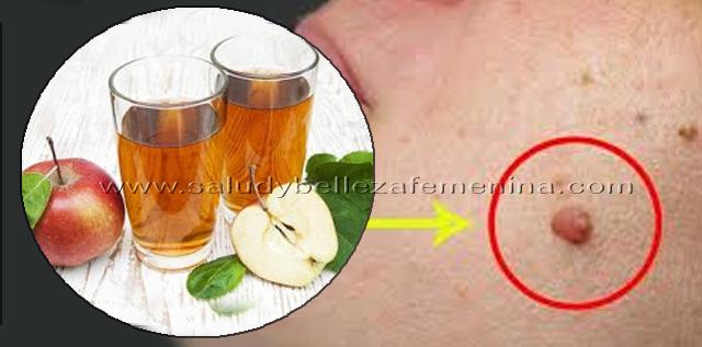 Cómo eliminar fibromas o verrugas  con vinagre de sidra de manzana, el vinagre de sidra de manzana es uno de los remedios caseros más eficaces para la eliminación de fibromas.